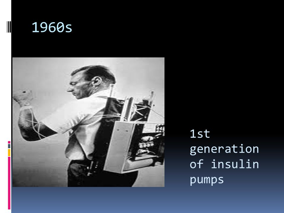1st generation of insulin pumps 1960s