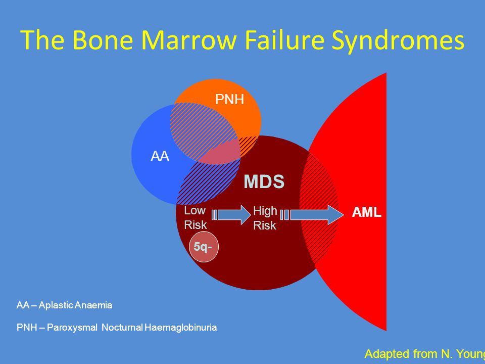 The Bone Marrow Failure Syndromes AA PNH AML Low Risk High Risk AA – Aplastic Anaemia PNH – Paroxysmal Nocturnal Haemaglobinuria MDS Adapted from N. Y