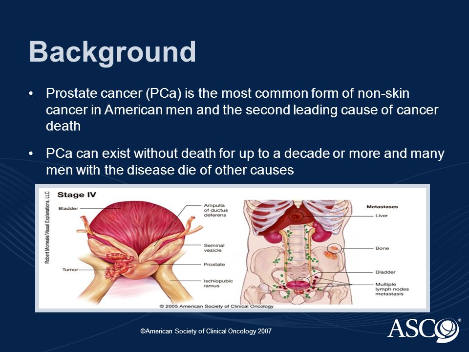 ©American Society of Clinical Oncology 2007 Background Prostate cancer (PCa) is the most common form of non-skin cancer in American men and the second leading cause of cancer death PCa can exist without death for up to a decade or more and many men with the disease die of other causes