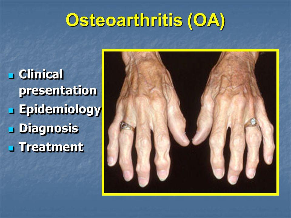 Osteoarthritis (OA) Clinical presentation Clinical presentation Epidemiology Epidemiology Diagnosis Diagnosis Treatment Treatment Clinical presentatio