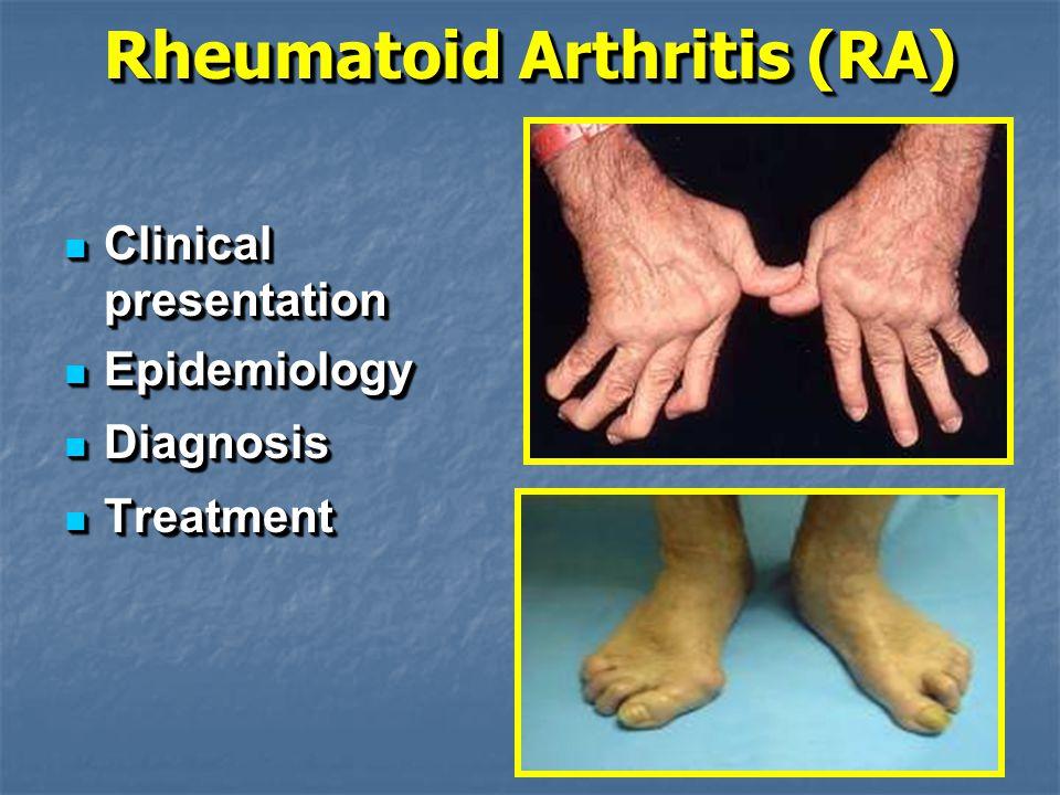 Rheumatoid Arthritis (RA) Clinical presentation Clinical presentation Epidemiology Epidemiology Diagnosis Diagnosis Treatment Treatment Clinical presentation Clinical presentation Epidemiology Epidemiology Diagnosis Diagnosis Treatment Treatment