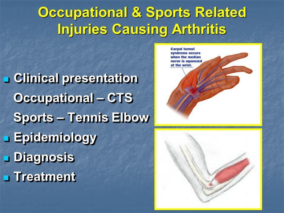 Occupational & Sports Related Injuries Causing Arthritis Clinical presentation Clinical presentation Occupational – CTS Occupational – CTS Sports – Tennis Elbow Sports – Tennis Elbow Epidemiology Epidemiology Diagnosis Diagnosis Treatment Treatment Clinical presentation Clinical presentation Occupational – CTS Occupational – CTS Sports – Tennis Elbow Sports – Tennis Elbow Epidemiology Epidemiology Diagnosis Diagnosis Treatment Treatment