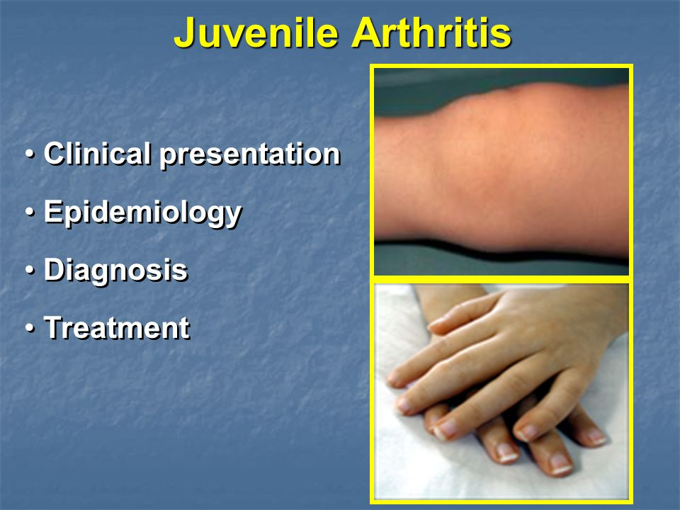 Juvenile Arthritis Clinical presentation Epidemiology Diagnosis Treatment Clinical presentation Epidemiology Diagnosis Treatment