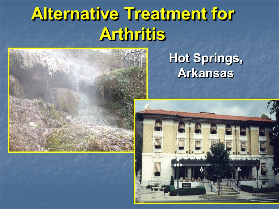 Alternative Treatment for Arthritis Hot Springs, Arkansas