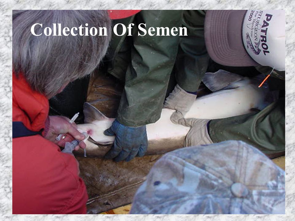 Collection Of Semen