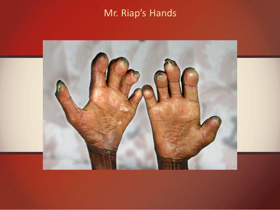 Mr. Riap's Hands