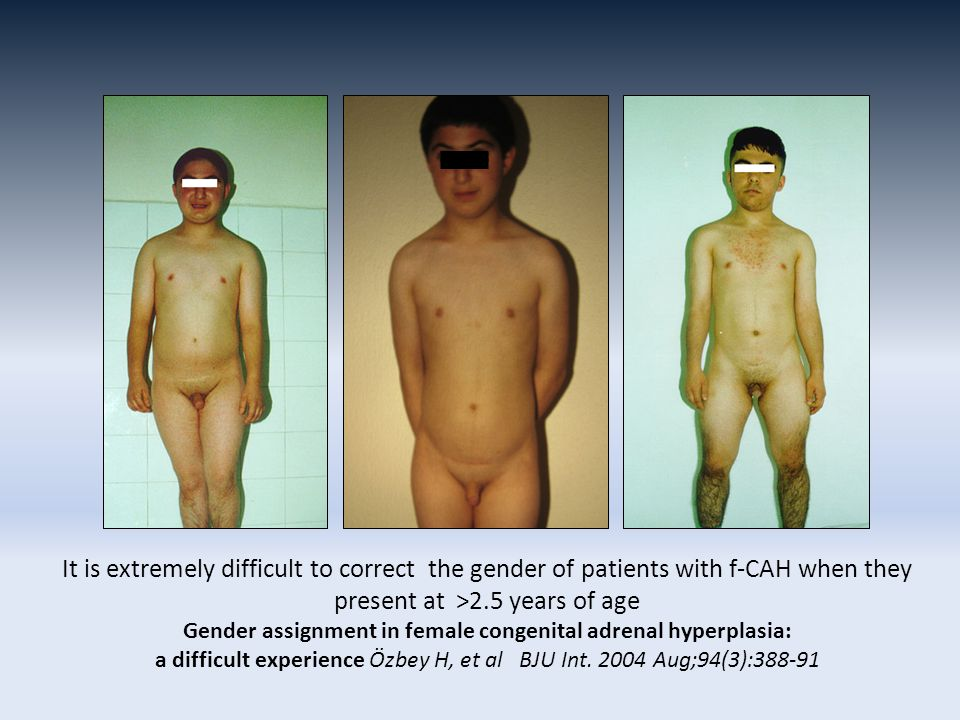It is extremely difficult to correct the gender of patients with f-CAH when they present at >2.5 years of age Gender assignment in female congenital adrenal hyperplasia: a difficult experience Özbey H, et al BJU Int.