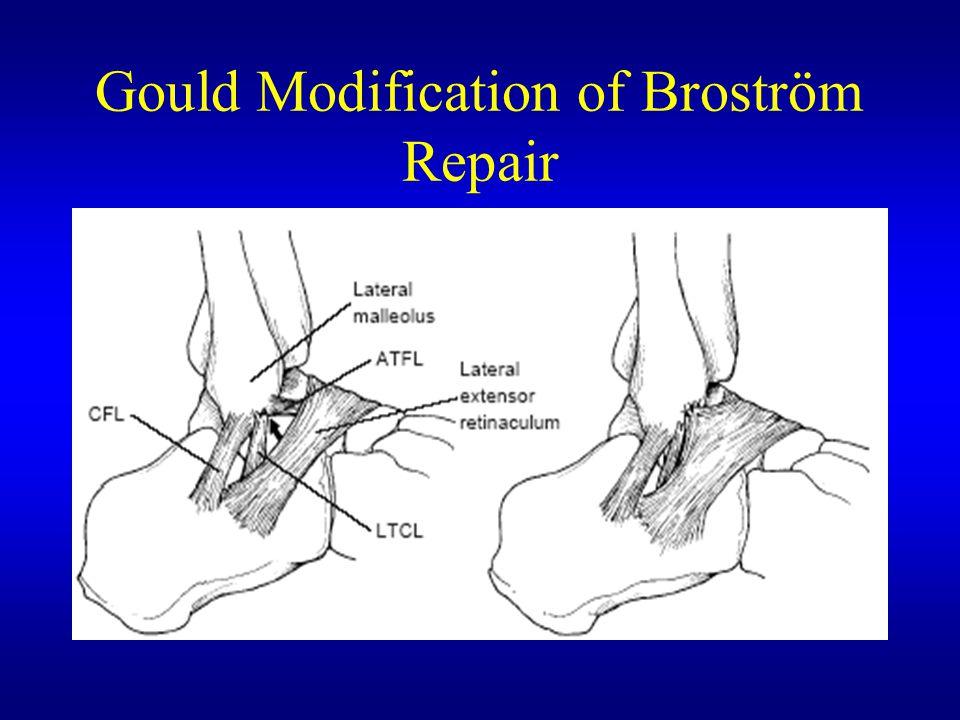 Gould Modification of Broström Repair