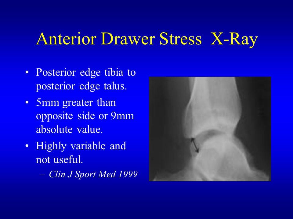 Anterior Drawer Stress X-Ray Posterior edge tibia to posterior edge talus.