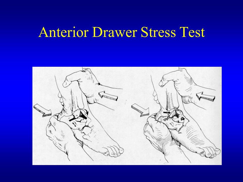 Anterior Drawer Stress Test