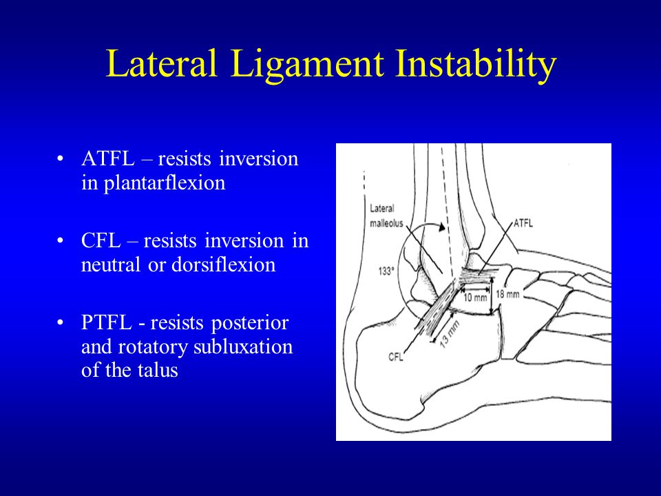 Lateral Ligament Instability ATFL – resists inversion in plantarflexion CFL – resists inversion in neutral or dorsiflexion PTFL - resists posterior and rotatory subluxation of the talus
