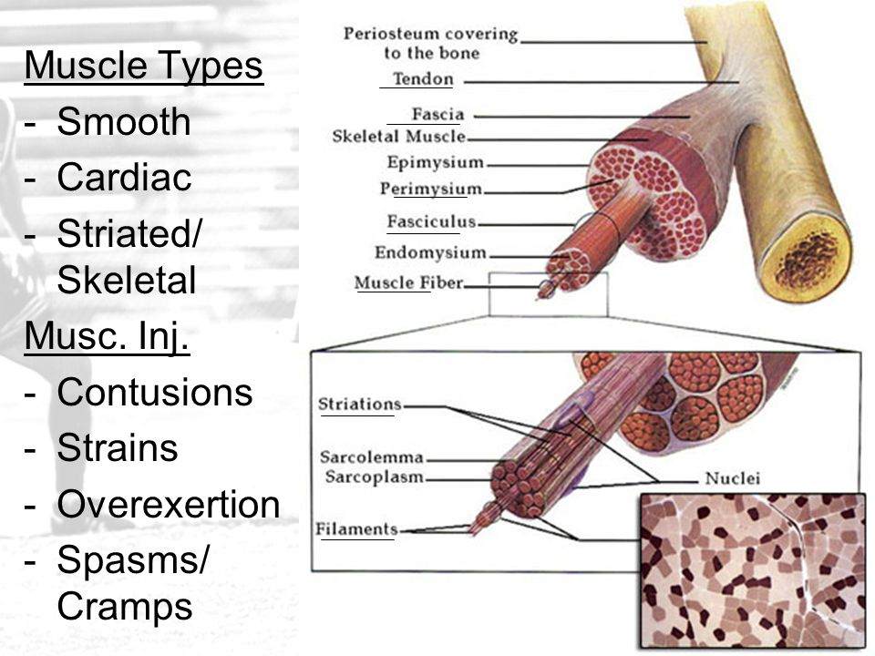 Muscle Types -Smooth -Cardiac -Striated/ Skeletal Musc. Inj. -Contusions -Strains -Overexertion -Spasms/ Cramps