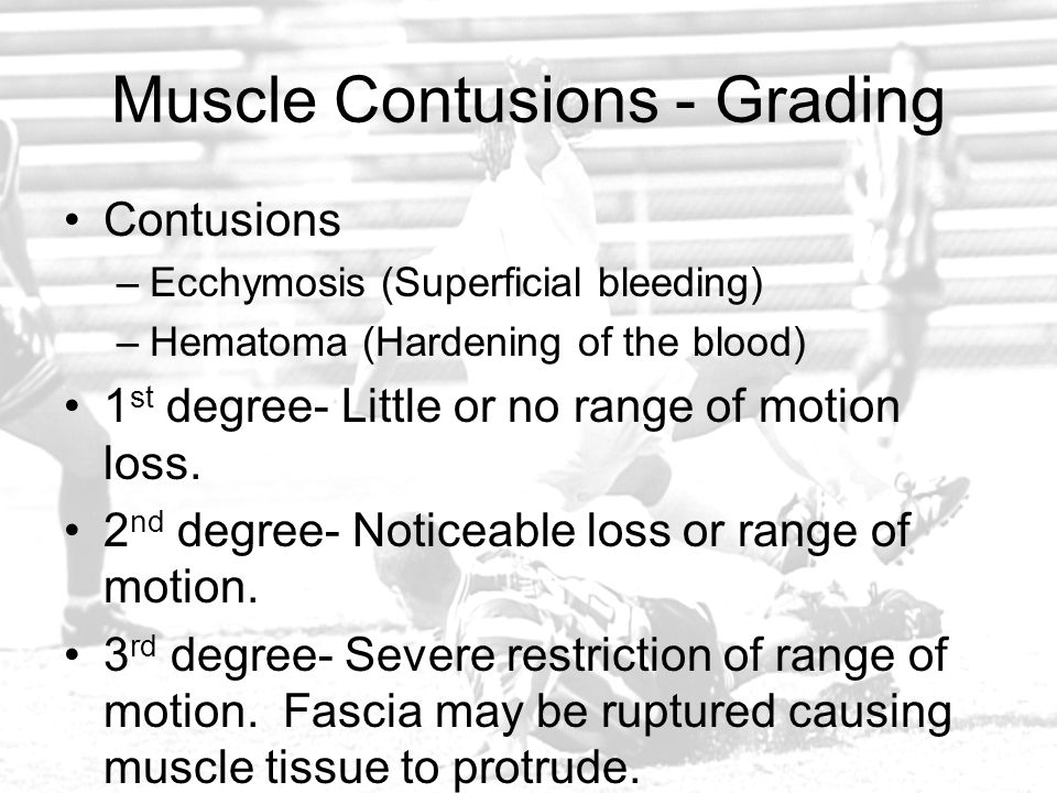 Muscle Contusions - Grading Contusions –Ecchymosis (Superficial bleeding) –Hematoma (Hardening of the blood) 1 st degree- Little or no range of motion