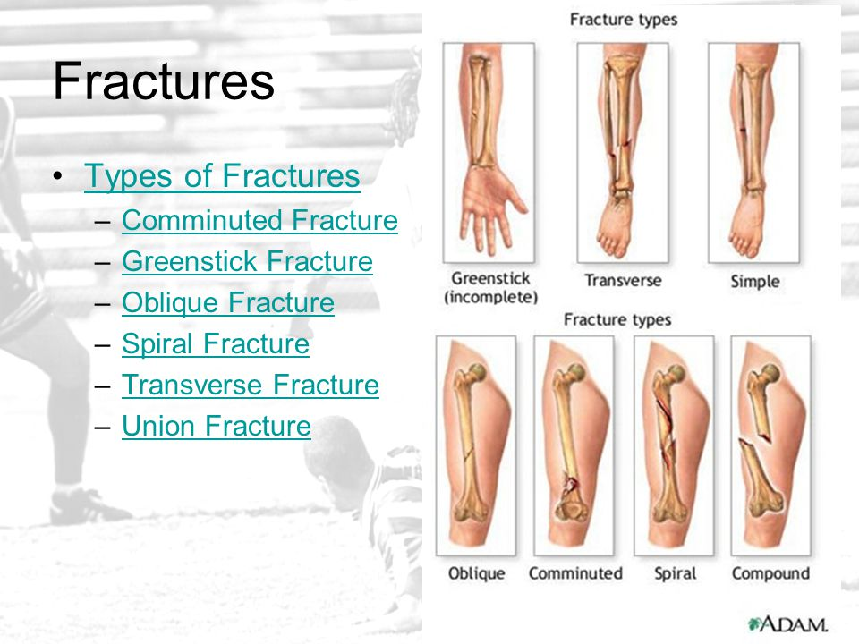 Fractures Types of Fractures –Comminuted FractureComminuted Fracture –Greenstick FractureGreenstick Fracture –Oblique FractureOblique Fracture –Spiral