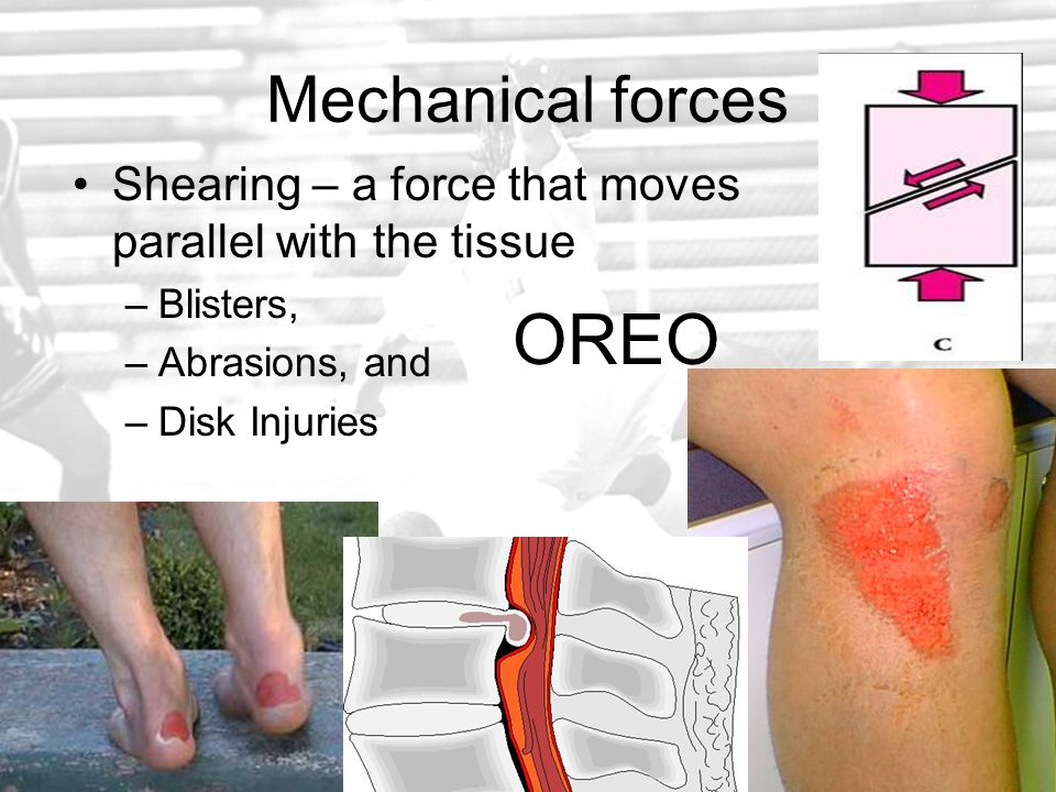 Articular fracture –Involves a joint surface.
