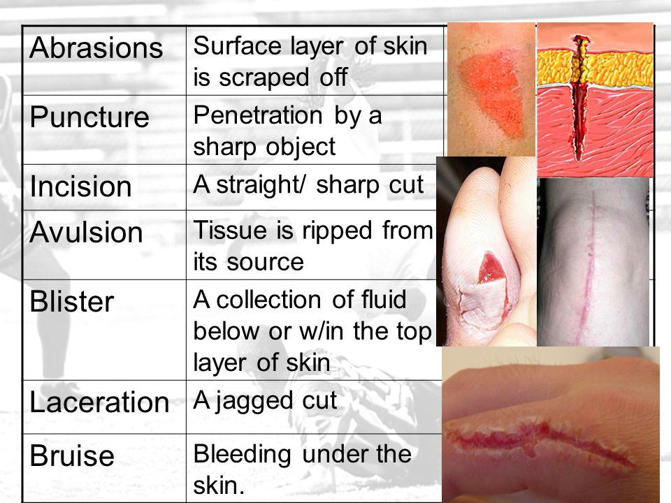 Abrasions Surface layer of skin is scraped off Puncture Penetration by a sharp object Incision A straight/ sharp cut Avulsion Tissue is ripped from it