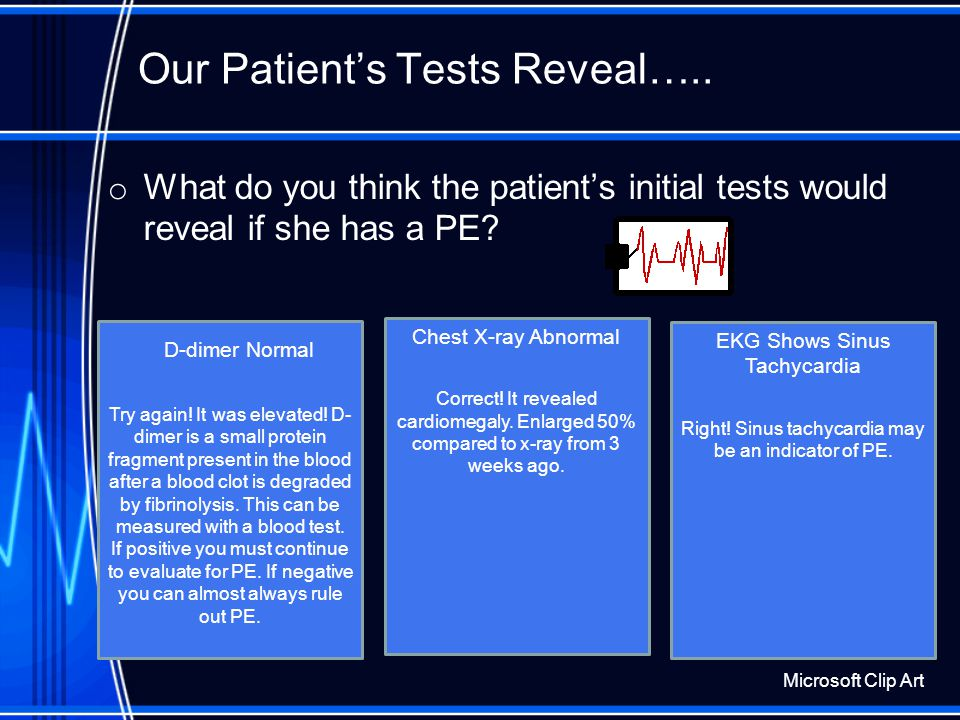 Our Patient Has Some Tests Completed: o The following tests are ordered to begin: electrocardiogram (EKG), chest x-ray, D-dimer. Microsoft Clip Art