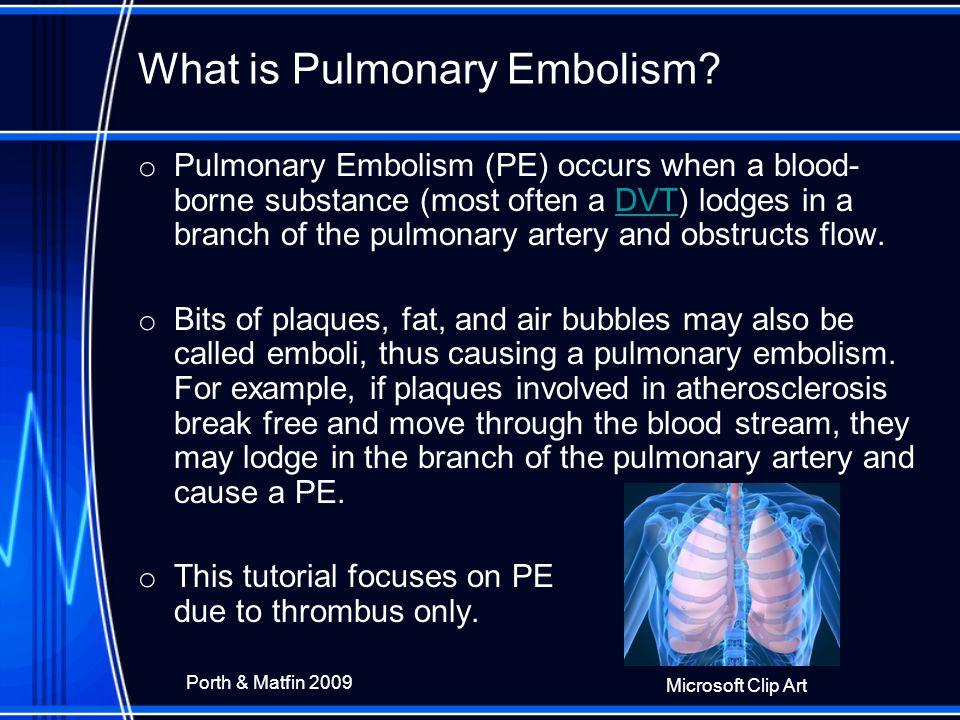 What is Pulmonary Embolism.