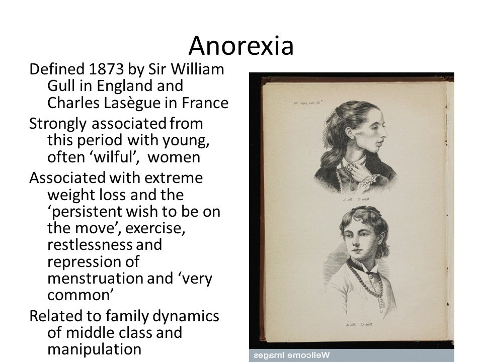 Anorexia Defined 1873 by Sir William Gull in England and Charles Lasègue in France Strongly associated from this period with young, often 'wilful', wo