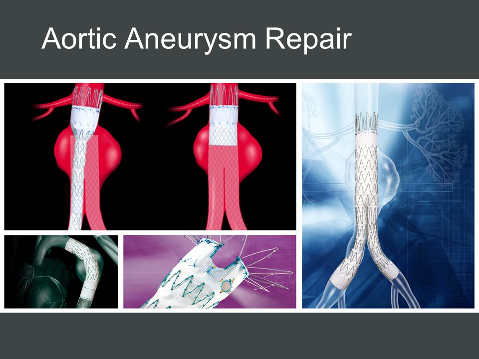 Aortic Aneurysm Repair