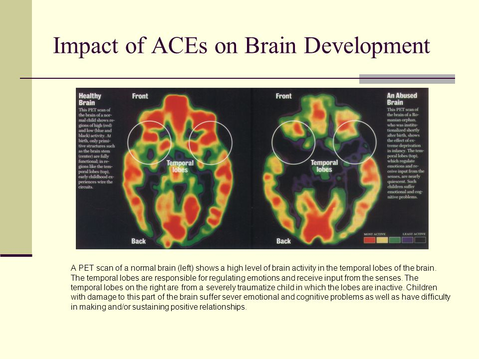 Impact of ACEs on Brain Development A PET scan of a normal brain (left) shows a high level of brain activity in the temporal lobes of the brain.