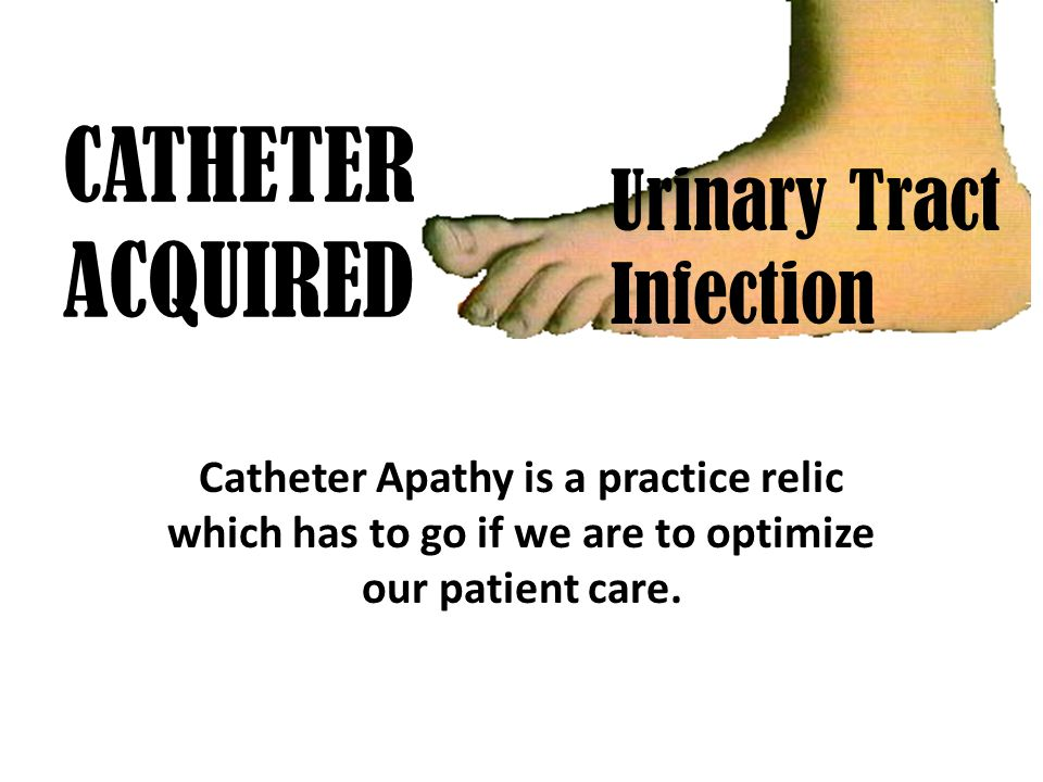 CATHETER ACQUIRED Catheter Apathy is a practice relic which has to go if we are to optimize our patient care.