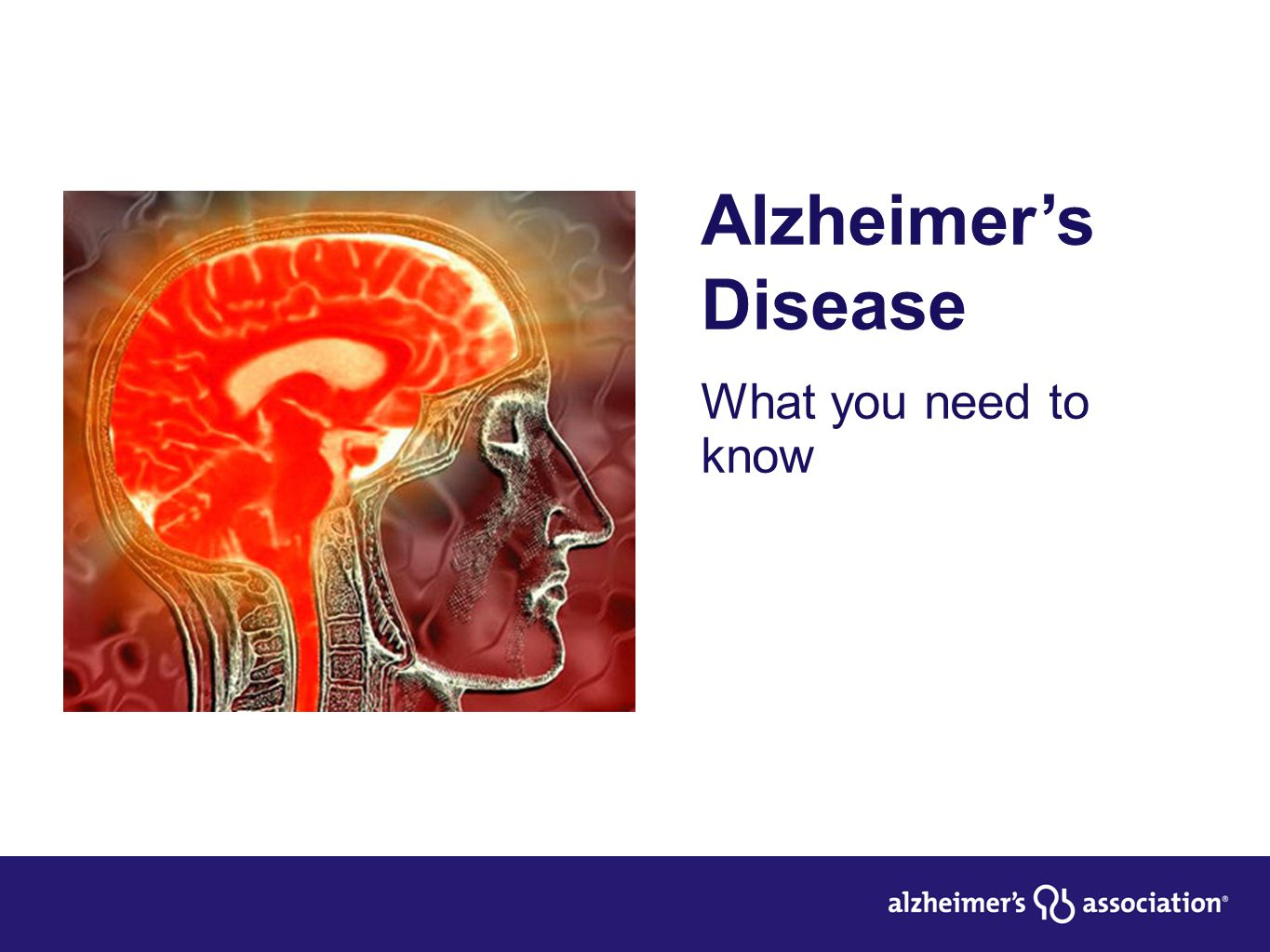 Alzheimer's Disease What you need to know