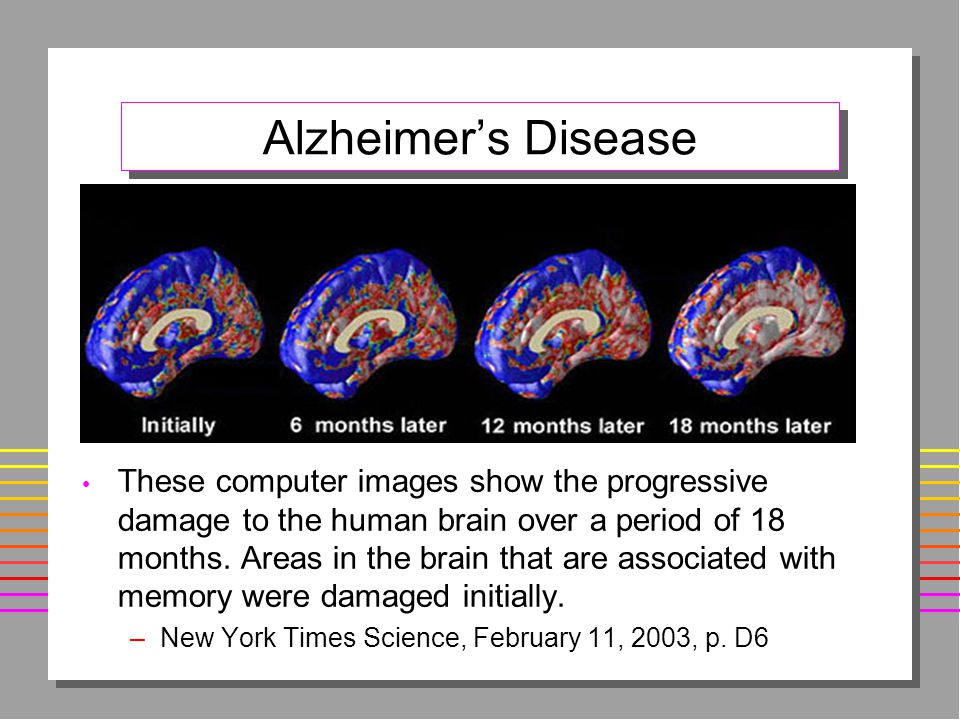 Alzheimer's Disease These computer images show the progressive damage to the human brain over a period of 18 months.