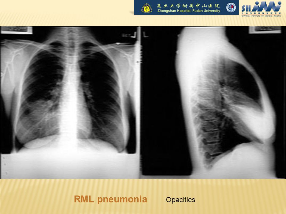 RML pneumonia Opacities