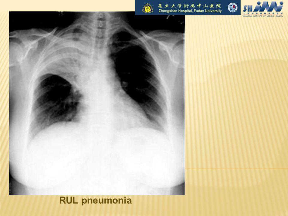 RUL pneumonia