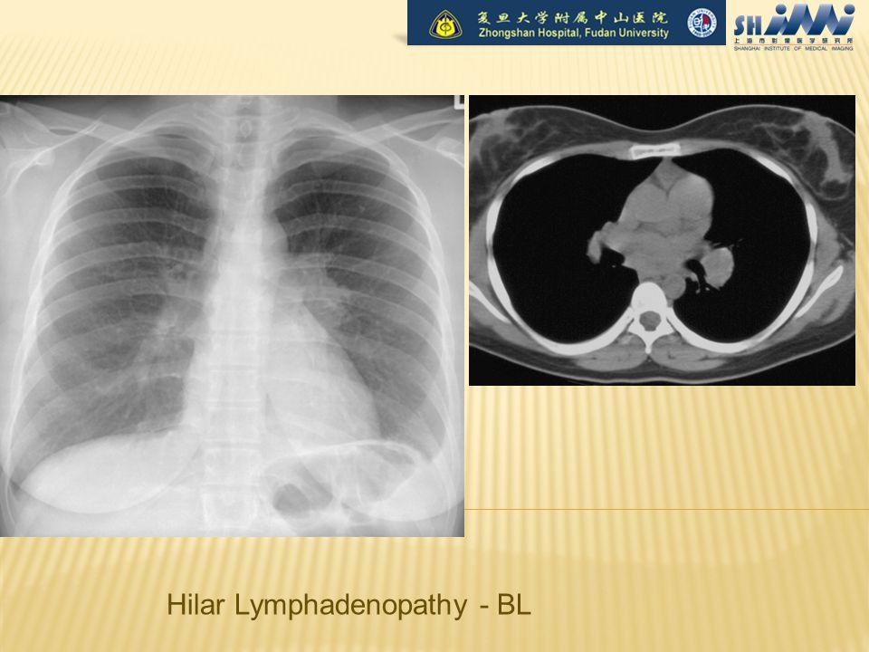 Hilar Lymphadenopathy - BL