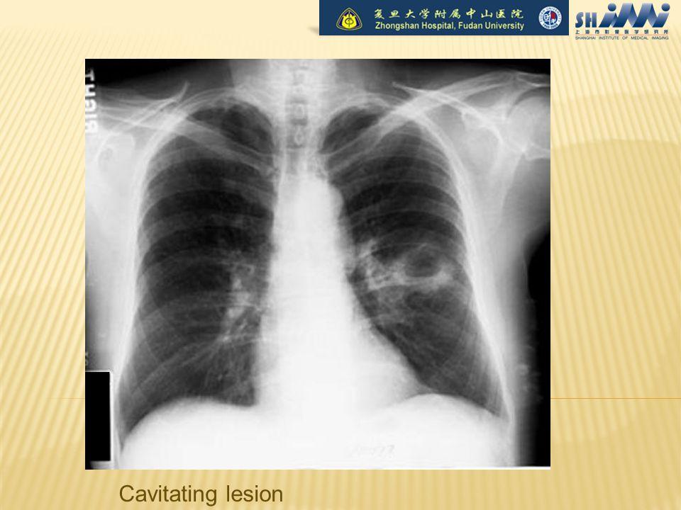 Cavitating lesion