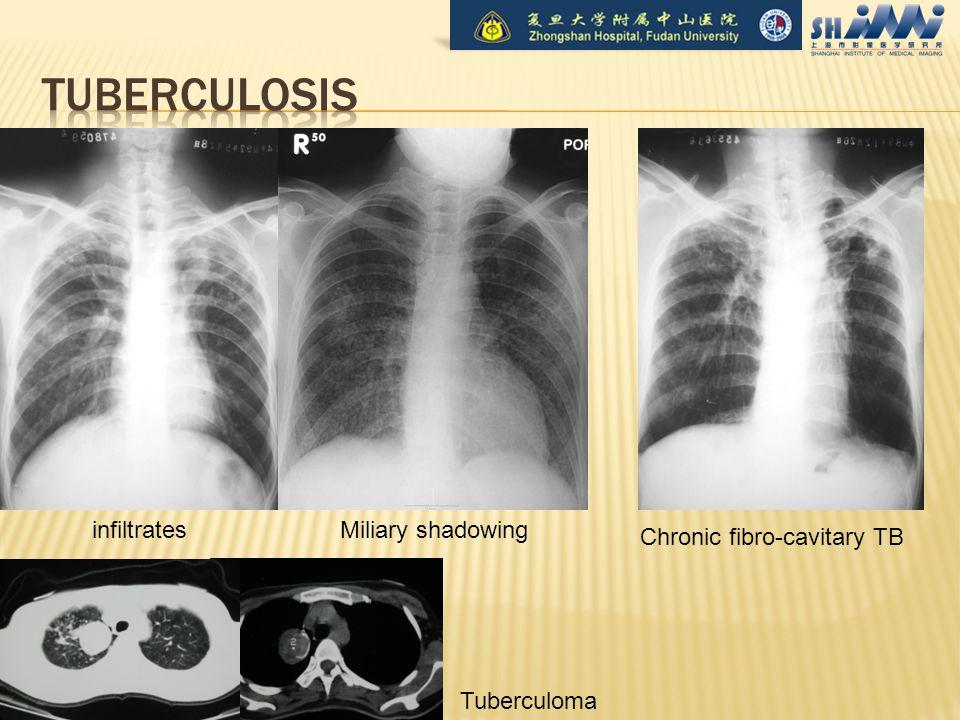 infiltratesMiliary shadowing Tuberculoma Chronic fibro-cavitary TB