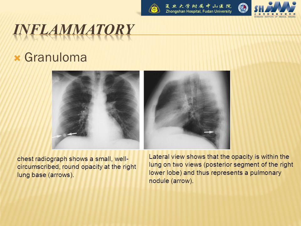  Granuloma chest radiograph shows a small, well- circumscribed, round opacity at the right lung base (arrows).