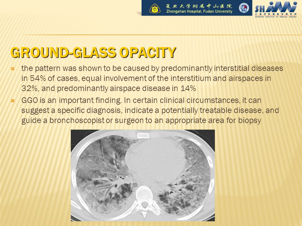 GROUND-GLASS OPACITY  the pattern was shown to be caused by predominantly interstitial diseases in 54% of cases, equal involvement of the interstitium and airspaces in 32%, and predominantly airspace disease in 14%  GGO is an important finding.