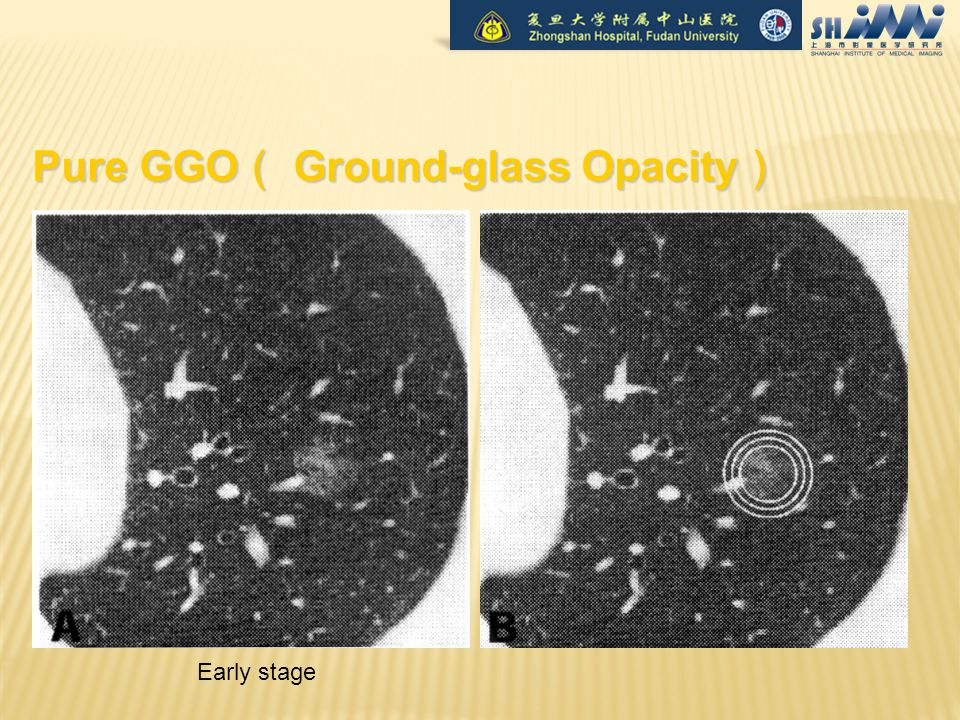 Pure GGO ( Ground-glass Opacity ) Early stage