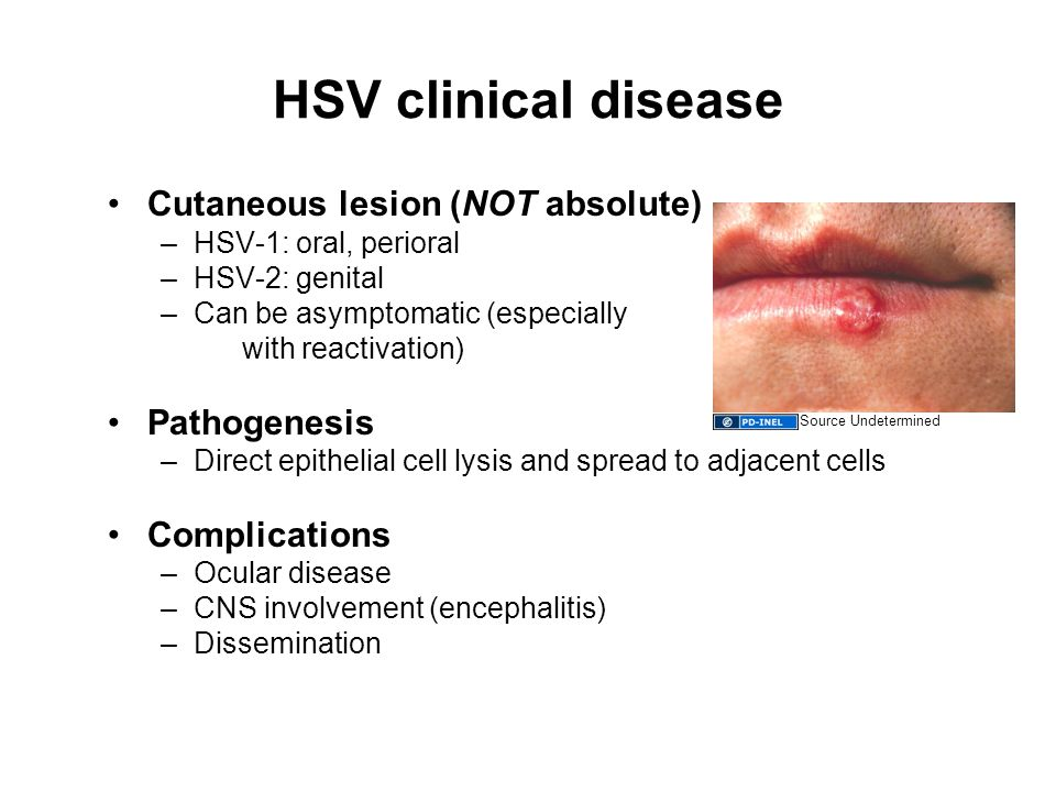 HSV clinical disease Cutaneous lesion (NOT absolute) –HSV-1: oral, perioral –HSV-2: genital –Can be asymptomatic (especially with reactivation) Pathogenesis –Direct epithelial cell lysis and spread to adjacent cells Complications –Ocular disease –CNS involvement (encephalitis) –Dissemination Source Undetermined