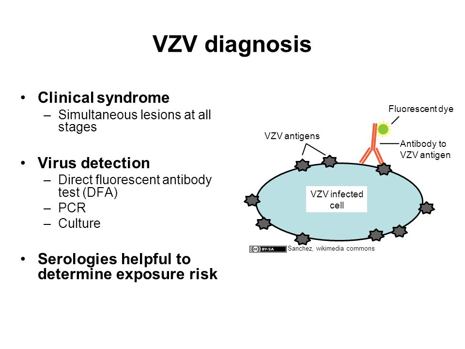 VZV diagnosis Clinical syndrome –Simultaneous lesions at all stages Virus detection –Direct fluorescent antibody test (DFA) –PCR –Culture Serologies helpful to determine exposure risk Antibody to VZV antigen VZV infected cell Fluorescent dye VZV antigens Sanchez, wikimedia commons