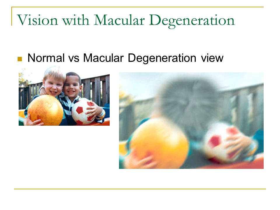 Vision with Macular Degeneration Normal vs Macular Degeneration view
