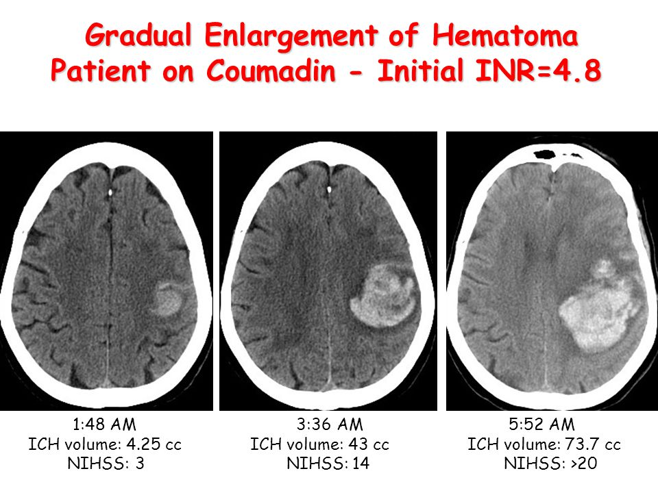 1:48 AM 3:36 AM 5:52 AM ICH volume: 4.25 cc ICH volume: 43 cc ICH volume: 73.7 cc NIHSS: 3NIHSS:14 NIHSS: >20 Gradual Enlargement of Hematoma Patient