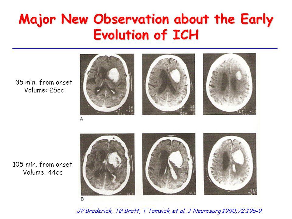Major New Observation about the Early Evolution of ICH JP Broderick, TG Brott, T Tomsick, et al. J Neurosurg 1990;72:195-9 35 min. from onset Volume: