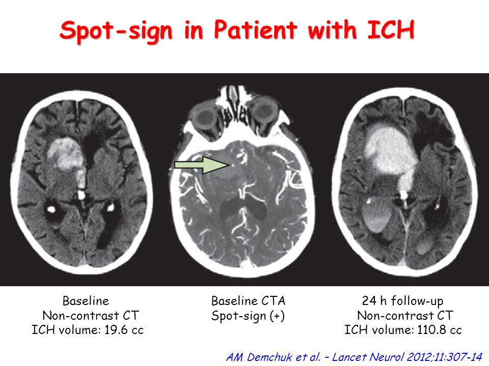 AM Demchuk et al. – Lancet Neurol 2012;11:307-14 Spot-sign in Patient with ICH Baseline Baseline CTA 24 h follow-up Non-contrast CT Spot-sign (+) Non-