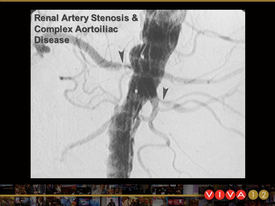 Renal Artery Stenosis & Complex Aortoiliac Disease