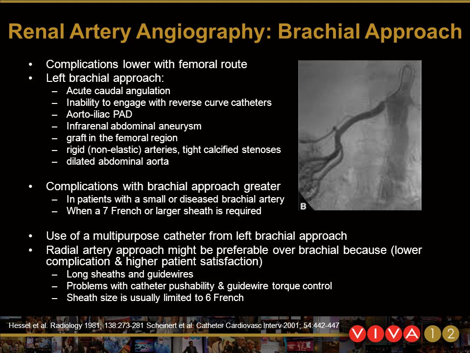 Renal Artery Angiography: Brachial Approach Complications lower with femoral route Left brachial approach: –Acute caudal angulation –Inability to engage with reverse curve catheters –Aorto-iliac PAD –Infrarenal abdominal aneurysm –graft in the femoral region –rigid (non-elastic) arteries, tight calcified stenoses –dilated abdominal aorta Complications with brachial approach greater –In patients with a small or diseased brachial artery –When a 7 French or larger sheath is required Use of a multipurpose catheter from left brachial approach Radial artery approach might be preferable over brachial because (lower complication & higher patient satisfaction) –Long sheaths and guidewires –Problems with catheter pushability & guidewire torque control –Sheath size is usually limited to 6 French Hessel et al.