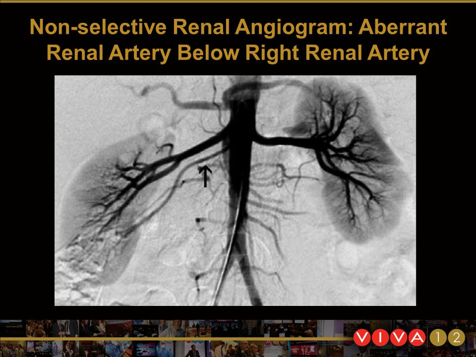 Non-selective Renal Angiogram: Aberrant Renal Artery Below Right Renal Artery