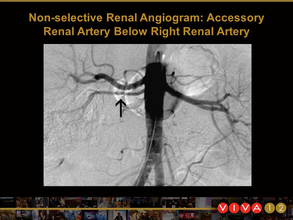 Non-selective Renal Angiogram: Accessory Renal Artery Below Right Renal Artery