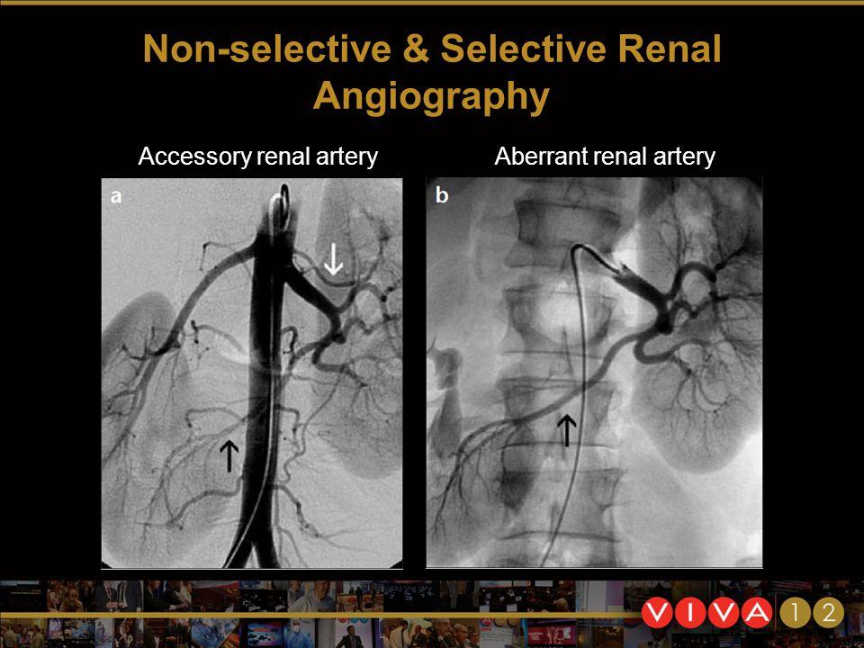 Non-selective & Selective Renal Angiography Accessory renal arteryAberrant renal artery
