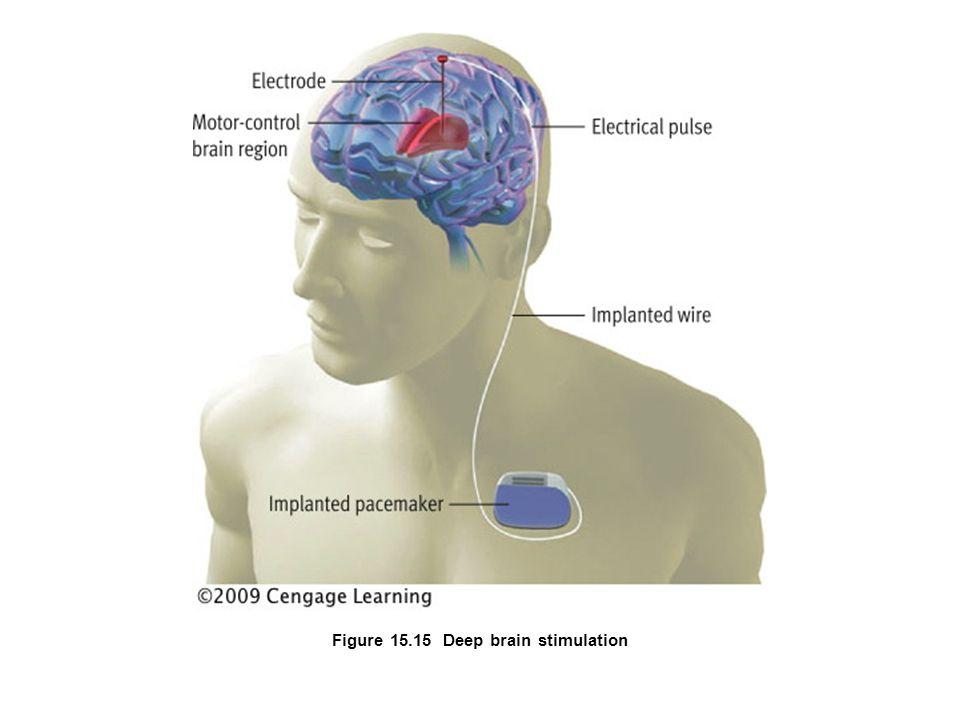 Figure 15.15 Deep brain stimulation