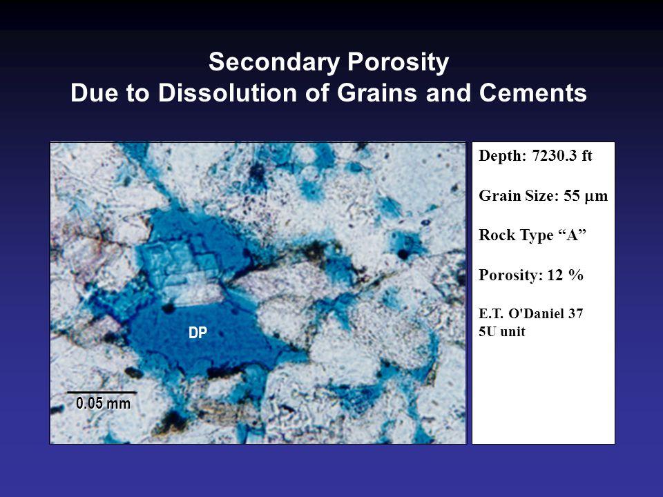 """DP 0.05 mm Depth: 7230.3 ft Grain Size: 55  m Rock Type """"A"""" Porosity: 12 % E.T. O'Daniel 37 5U unit Secondary Porosity Due to Dissolution of Grains a"""