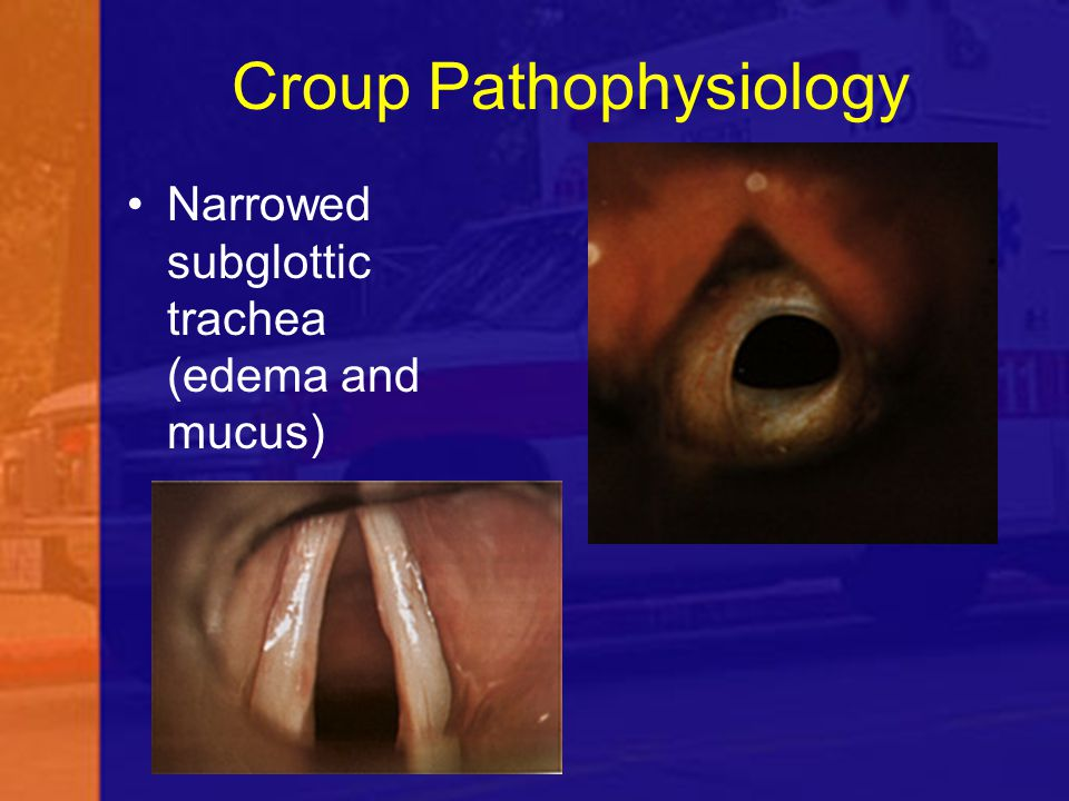 Croup Pathophysiology Narrowed subglottic trachea (edema and mucus)